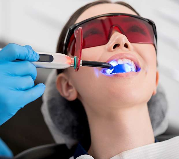 Oakland Professional Teeth Whitening